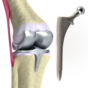 Densified Metals | Biomedical Implants, Artificial Joints